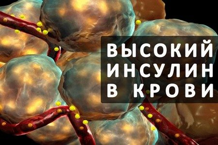 Как снизить инсулин в крови: препараты и народные средства для ...