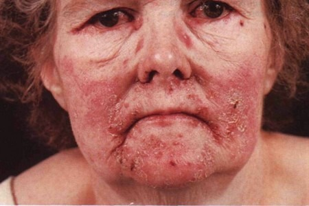 Заболевание на лице
