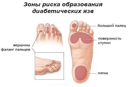 Схема появления язв на ногах