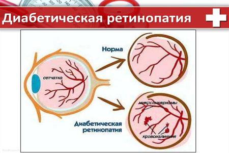 Схема диабетической ретинопатии, глаз, сетчатка