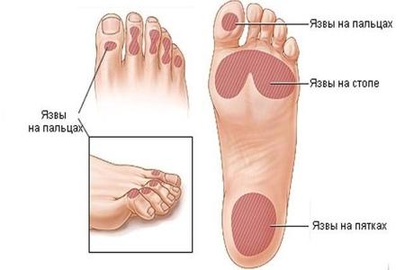 Рисунок ног